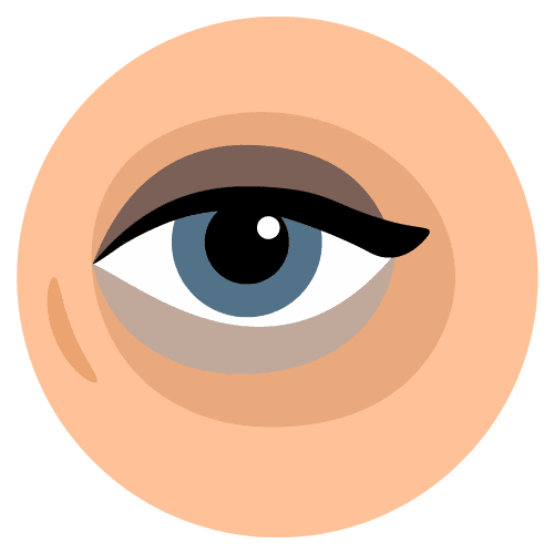 Icon-Borse-e-occhiaie