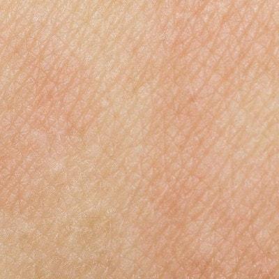 Img-Pelle-sensibile