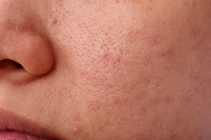 come chiudere i pori della pelle