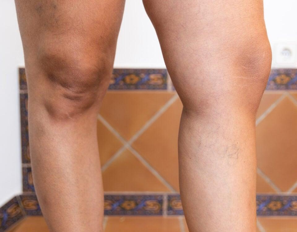 cosa può causare gonfiore alle gambe